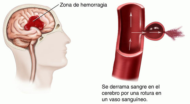 overview of a stroke essay